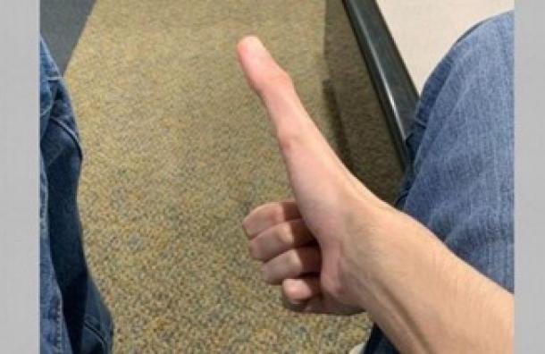 Jacob tiene un pulgar que mide 13 centímetros