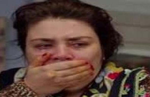 """Te preguntaste en algún momento ¿Qué le pasó a Nuran en las manos? En la Telenovela """"Me Robó Mi Vida"""""""