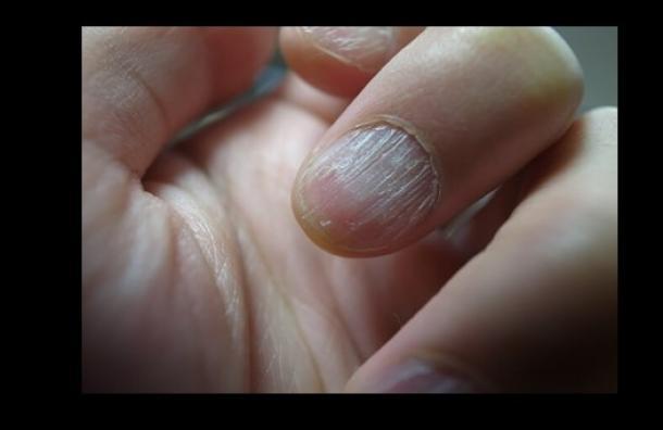 ¿Por qué aparecen las estrías en las uñas?